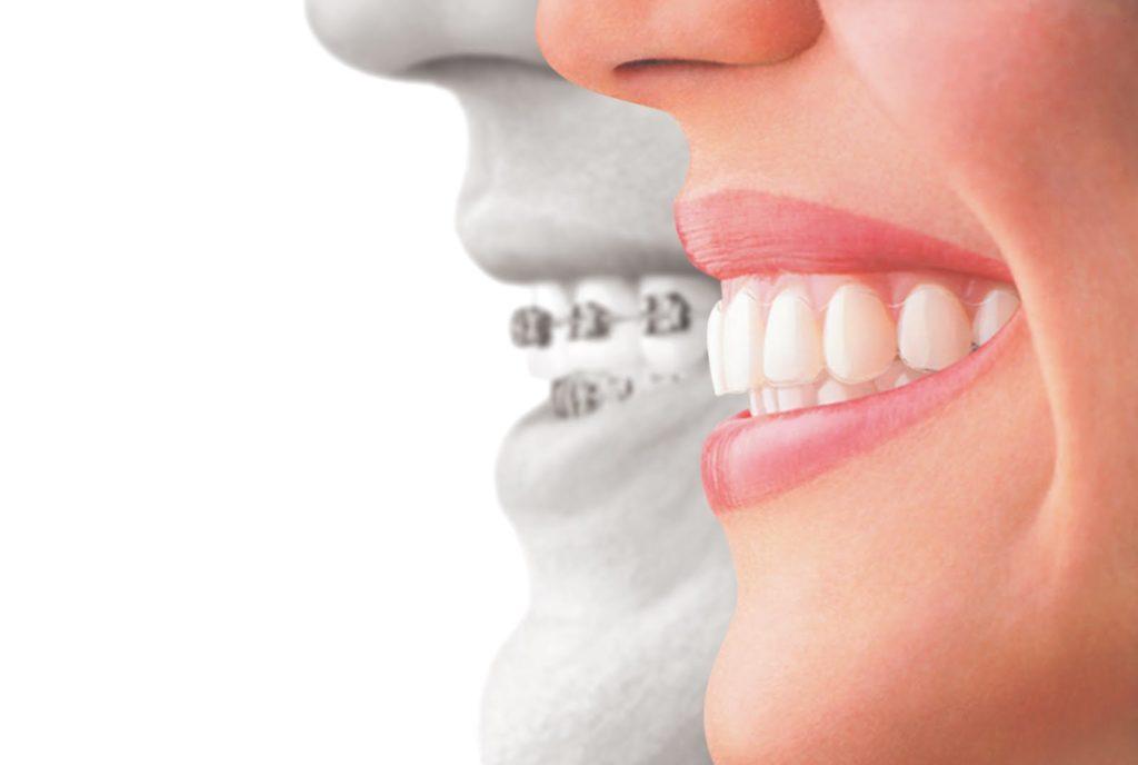Orthodontics Baytown, Deer Park, Pasadena, Pearland