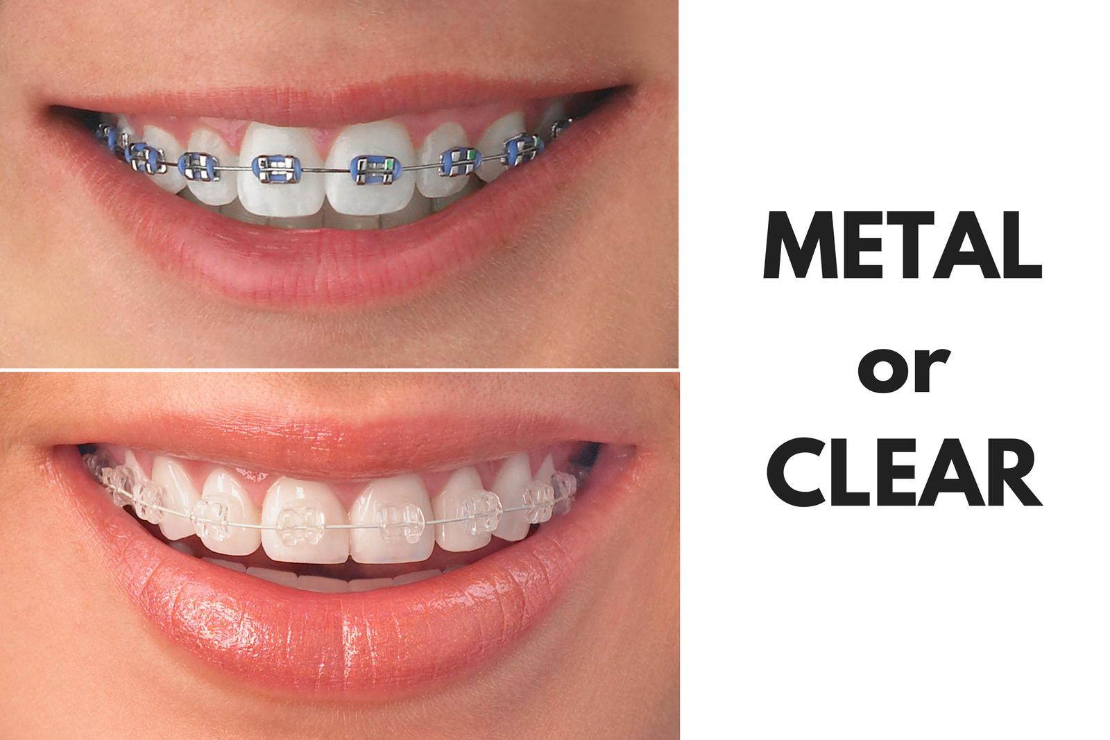 Ask Your Baytown, Deer Park, Pasadena or Pearland Dentist: Should I Get Metal or Clear Braces?